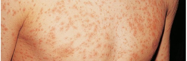 Picture of Measles in an Adult - WebMD