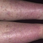 Treat Varicose Eczema Naturally