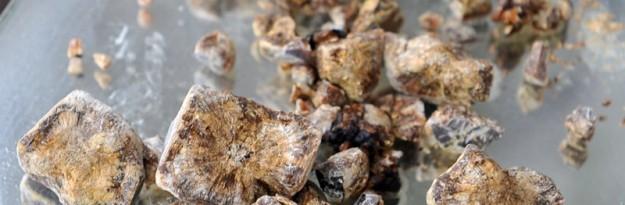 bladder stones