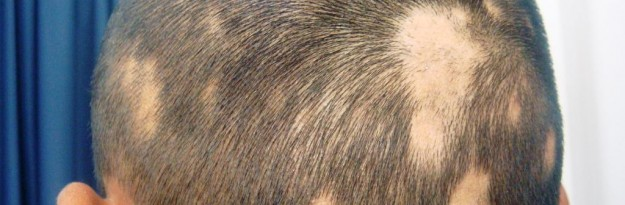 How To Treat Traction Alopecia Naturally