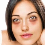 Get Rid of Dark Circles Under the Eyes Naturally