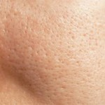 Get Rid of Open Pores Naturally